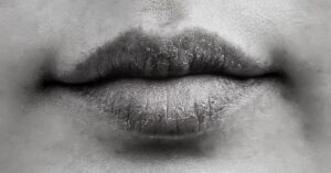 dry mouth. dry lips